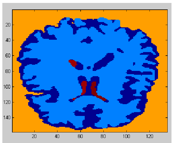 Slice of segmented 3d MRI data.